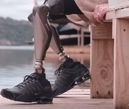 Genium Above Knee Bionic Prosthetics