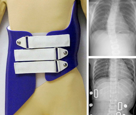 Pediatric Scoliosis Brace
